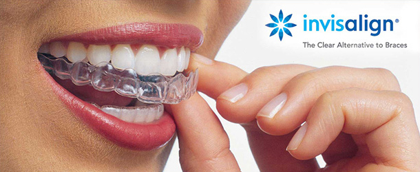 Invisalign being placed onto teeth